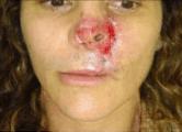 Necrose nasal irreversível após injeção de PMMA para afinar a ponta nasal