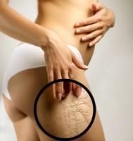 Mulher com estrias na perna