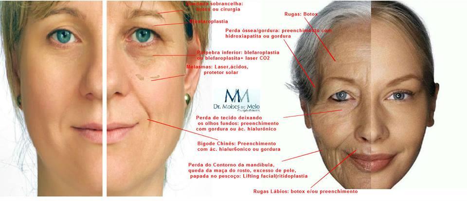 Imagem mostrando onde as rugas são mais comuns no rosto feminino