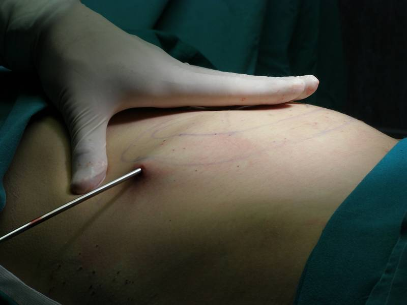 Cirurgia plástica de Hidrolipo