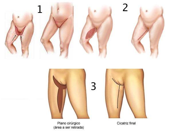 Representação esquemática de três casos diferentes de flacidez e a cicatriz final resultante
