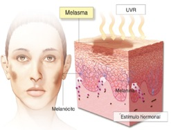 Melasma: Background, Pathophysiology, Epidemiology
