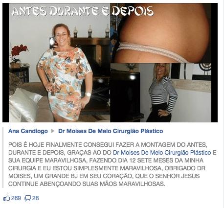 Ana Candiogo Depoimento sobre cirurgia plástica astes durante e depois