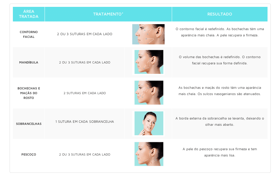 Fio Silhouette tratamento e resultados