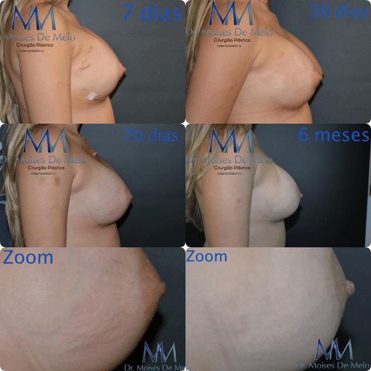 Pós operatório de cirurgia plástica - Prótese de silicone. Paciente com 1,70m de altura, e peso de 69kg. Prótese redonda alta de 380ml. Devido ao edema a pele foi muito esticada, ocasionando estrias. Foi tratada por mim com retinóicos.