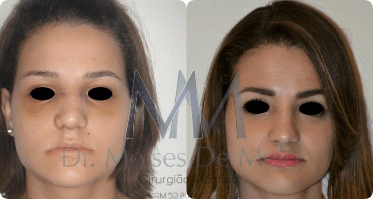 Pós operatório de Cirurgia Plástica - rinoplastia antes e depois