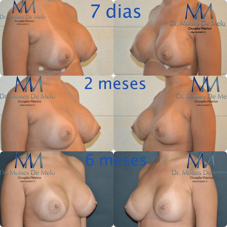 Pós operatório de cirurgia plástica - Prótese de silicone, paciente com 1,64m de altura e 65kg de peso. Observe como houve mudança da posição da aréola com o passar do tempo.