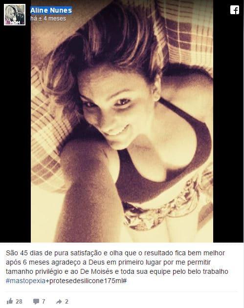  Aline Nunes depoimento cirurgia plastica