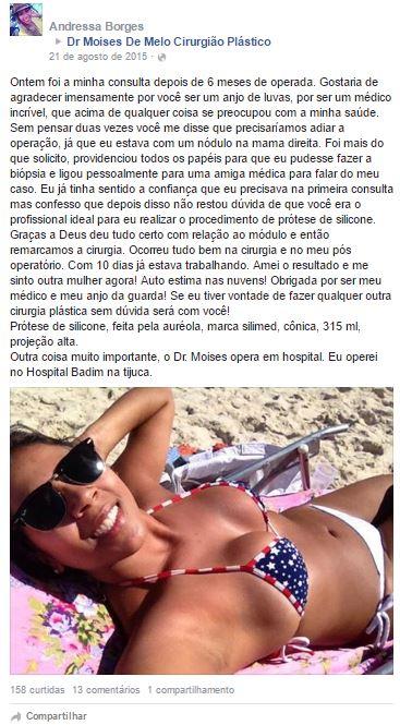 Andressa Borges depoimento cirurgia plastica