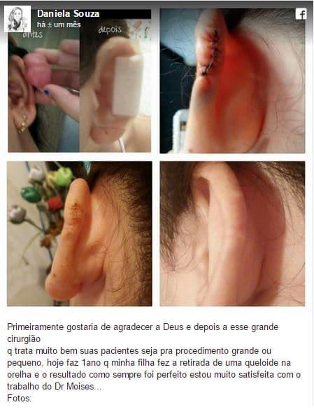 Daniela Souza depoimento cirurgia plastica