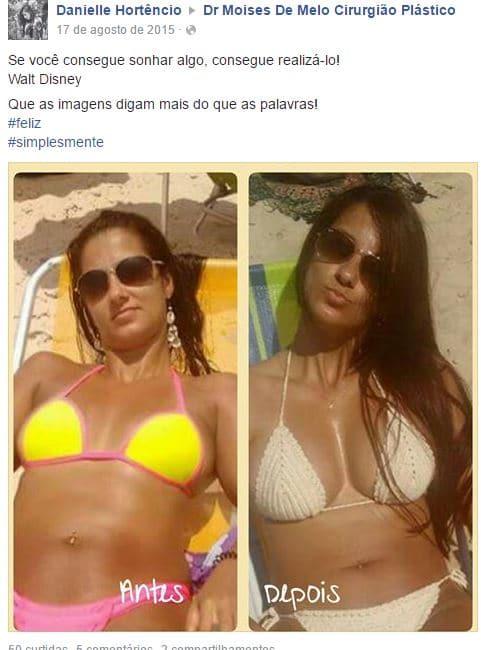 Danielle Hortencio depoimento cirurgia plastica