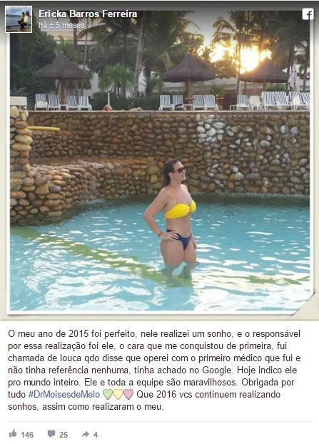 Ericka Barros Ferreira  depoimento cirurgia plastica