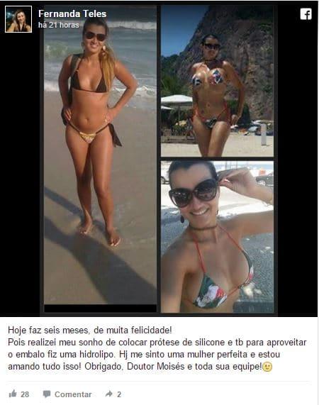 Fernanda Teles depoimento cirurgia plastica