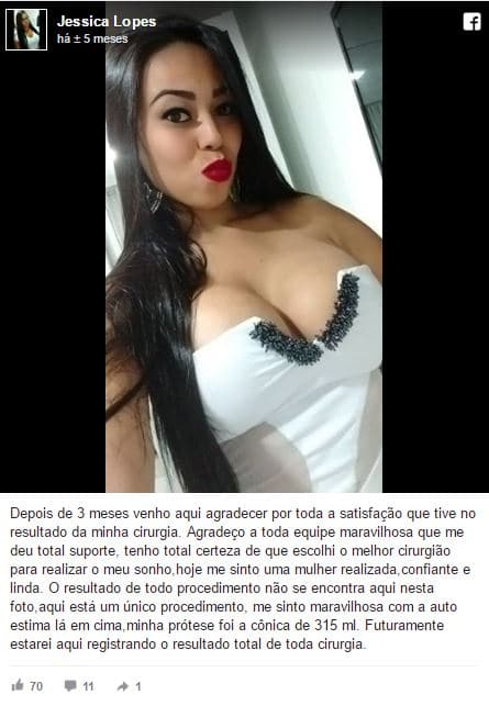 Jessica Lopes depoimento cirurgia plastica