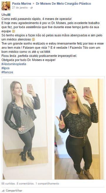 Paola Marins  depoimento cirurgia plastica