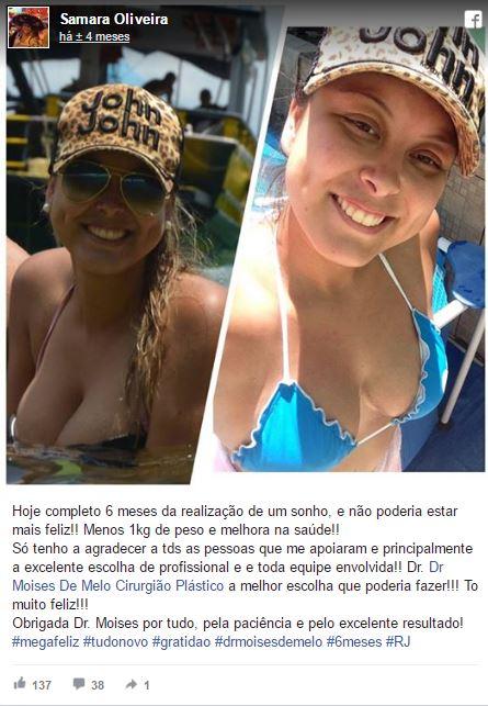 Samara Oliveira depoimento cirurgia plastica
