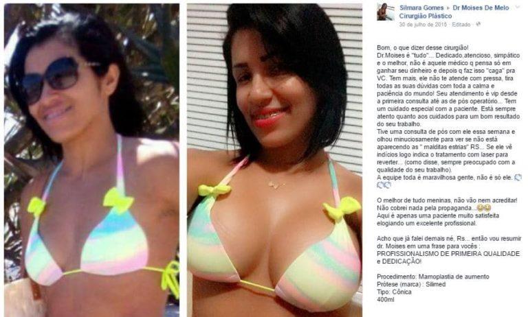 Silmara Gomes depoimento cirurgia plastica