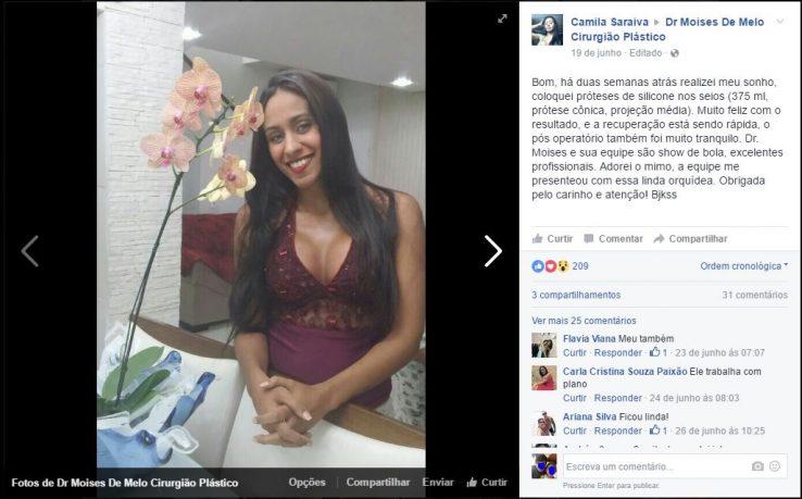 Depoimento sobre cirurgia plástica por Camila Saraiva