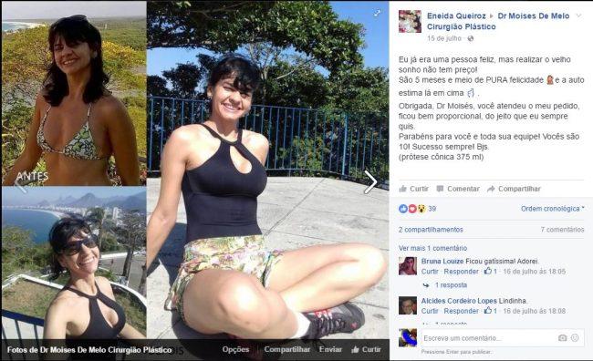 Depoimento sobre cirurgia plástica por Eneida Queiroz