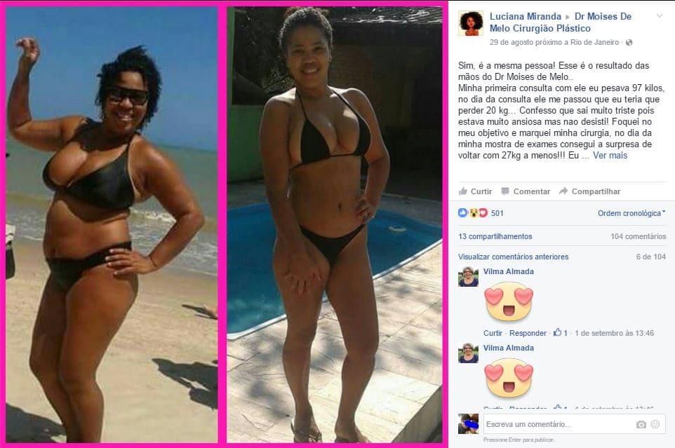 Depoimento sobre cirurgia plástica por Luciana Miranda