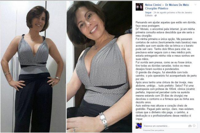 Depoimento sobre cirurgia plástica por Neiva Cimini