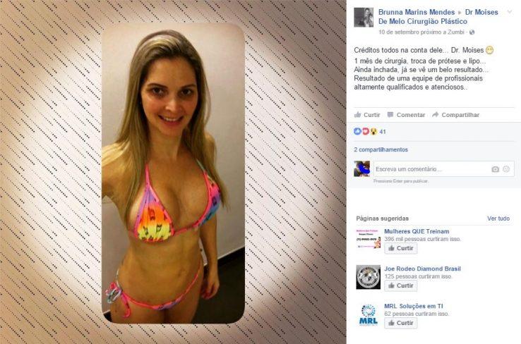 Depoimento sobre cirurgia plástica por Brunna Marins Mendes