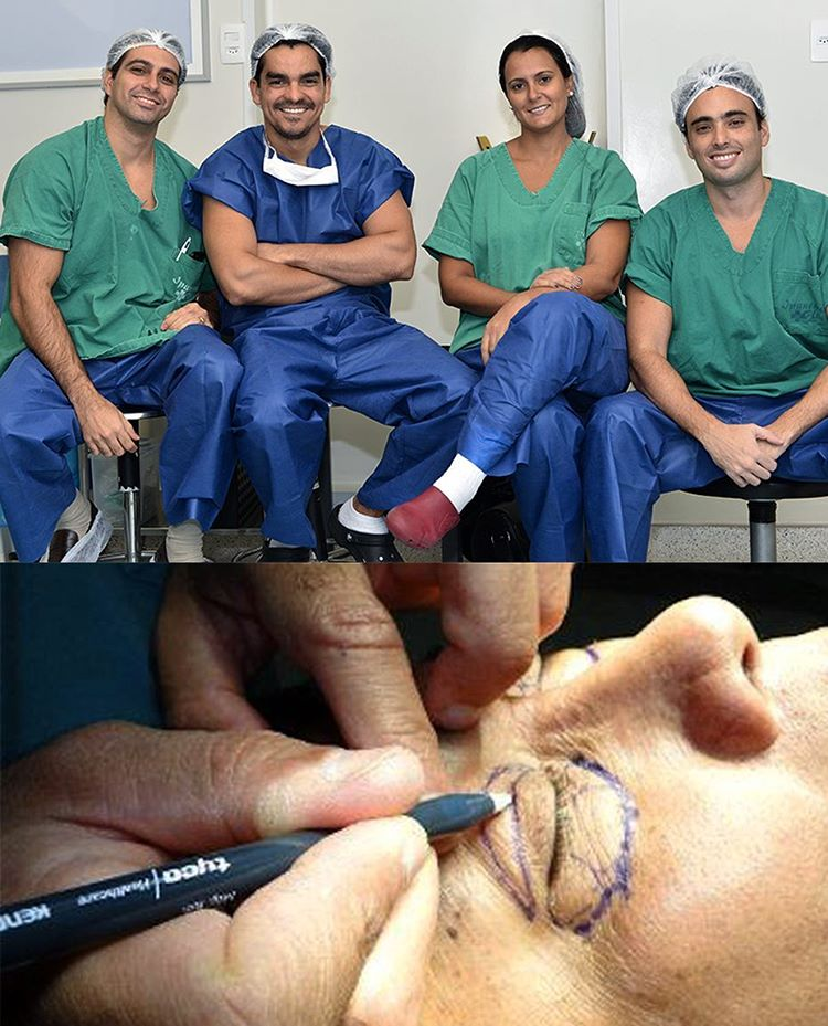 Blefaroplastia rejuvenescer o olhar