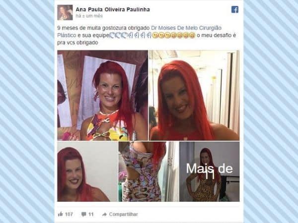 Ana Paula Oliveira Paulinha depoimento cirurgia plastica