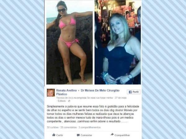 Depoimento sobre cirurgia plastica Renata Avelino