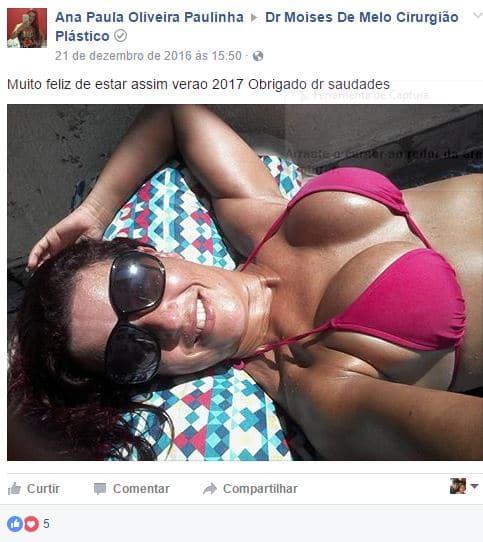 Depoimento sobre cirurgia plastica por Ana Paula Oliveira
