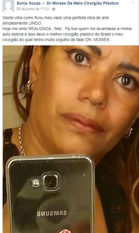 Depoimento sobre cirurgia plástica por Sonia Souza