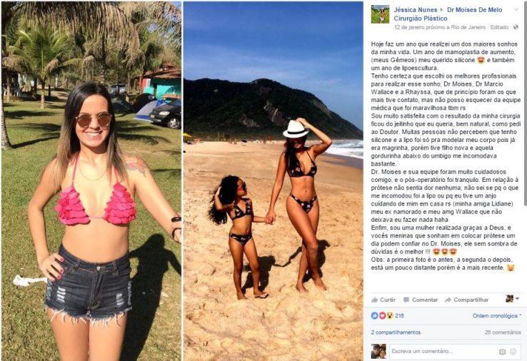 Depoimento sobre cirurgia plastica por Jessica Nunes