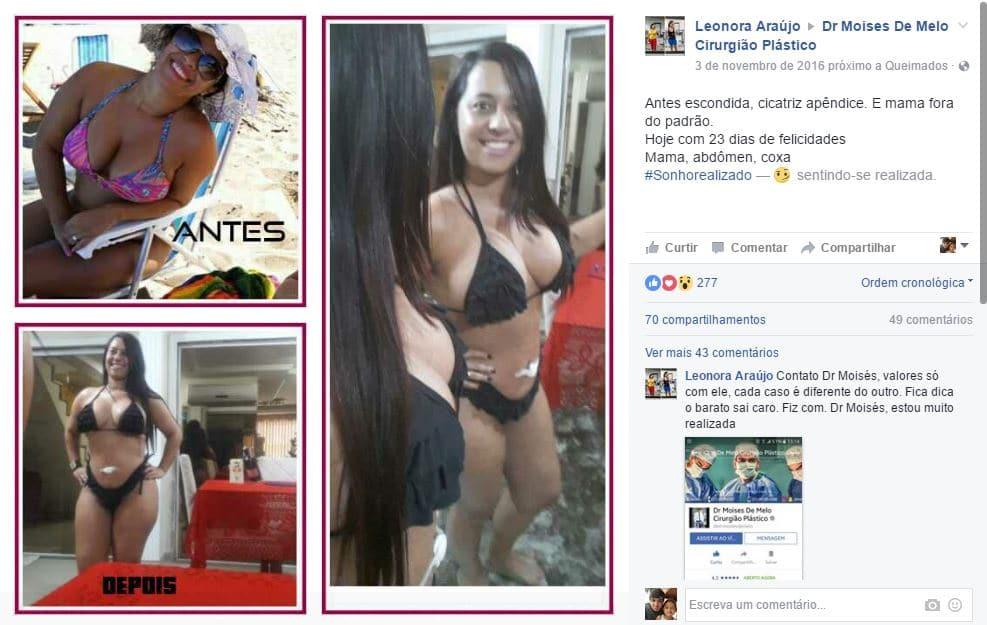 Depoimento sobre cirurgia plastica por Leonora Araujo