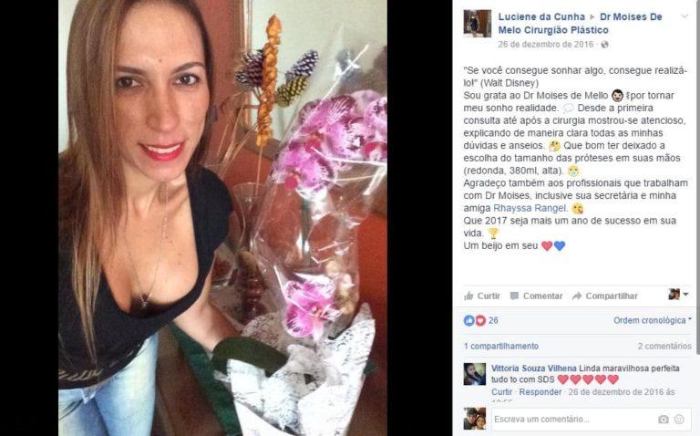 Depoimento sobre cirurgia plastica por Luciene da Cunha