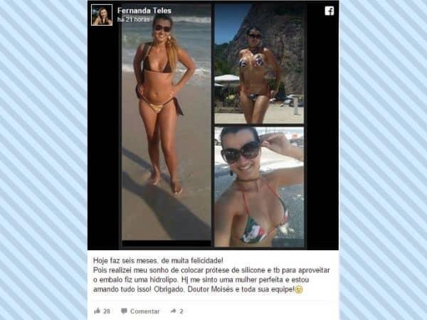 Fernanda-Teles-depoimento-cirurgia-plastica 2