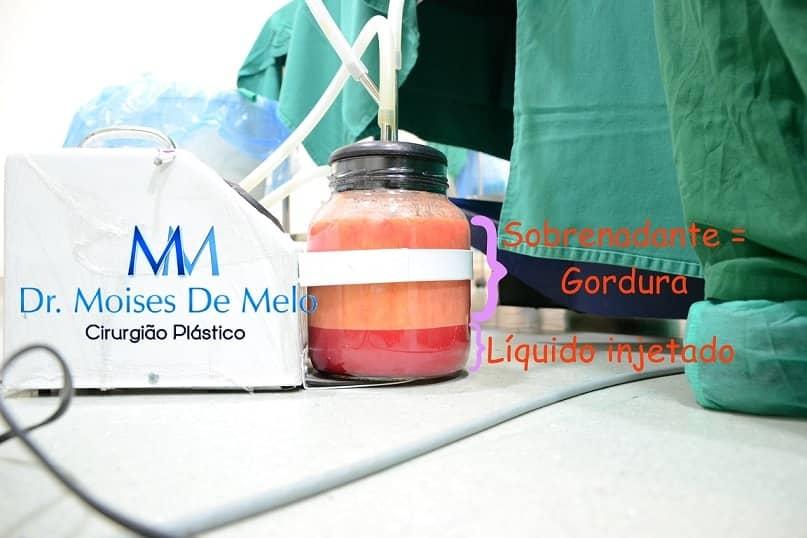 Gordura retirada durante a cirurgia