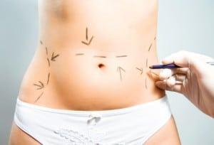 Marcação de caneta para cirurgia plastica lipoaspiração