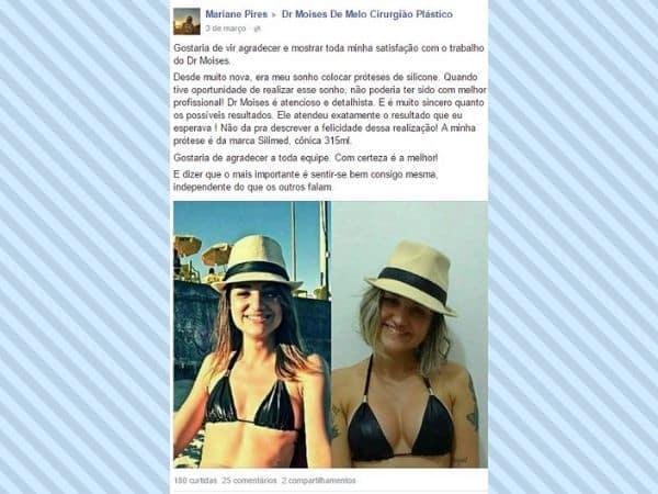 Mariane Pires depoimento cirurgia plastica