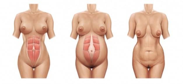 Mini-abdominoplastia e Abdominoplastia Abdome antes da gravidez, durante e após o parto