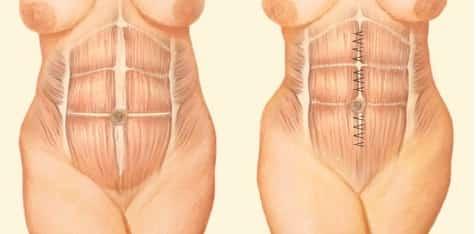 Mini-abdominoplastia e Abdominoplastia Musculatura aproximada por pontos