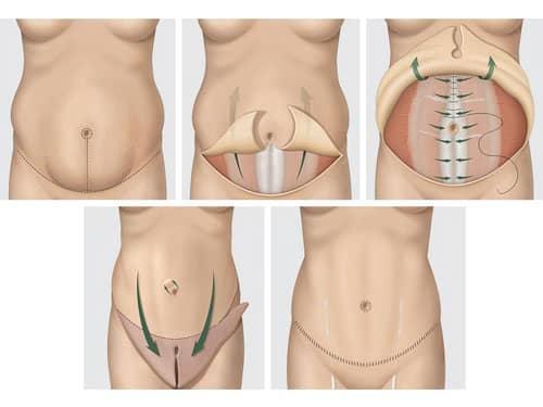 Mini-abdominoplastia e Abdominoplastia Retirada do excesso de pele