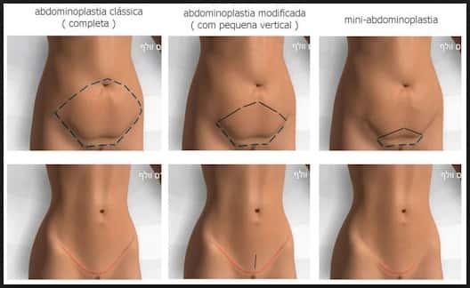 Mini-abdominoplastia e Abdominoplastia marcação do excesso de pele a ser retirado