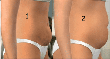 1: Indicação Mini-abdominoplastia 2: Indicação abdominoplastia clássica