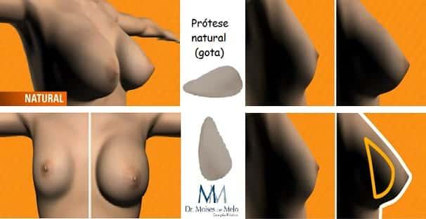 Modelo de prótese de silicone gota natural