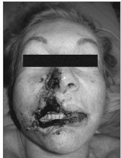 Necrose nasal e de labio superior apos uso de PMMA metacril metacrilato