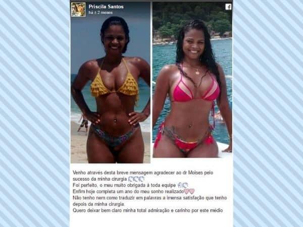 Priscila Santos depoimento cirurgia plastica
