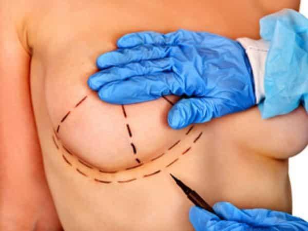 Reconstrução mamária