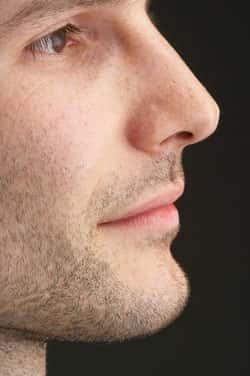 Rinoplastia - Em busca da harmonia facial - Cirurgia plástica no nariz em homens masculina