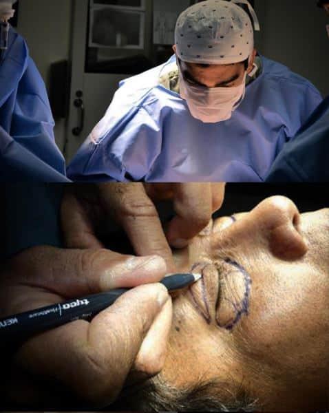 Rinoplastia e blefaroplastia Nariz e olhos