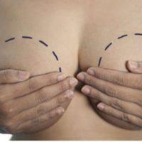 Hipertrofia de mama – Seios grandes demais